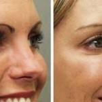 Escova de Botox – Botox Capilar: Como funciona? Alisa?