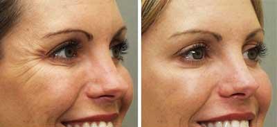 Botox Resultados - Antes e depois