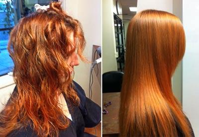 Fotos resultados antes e depois escova de carbocisteína